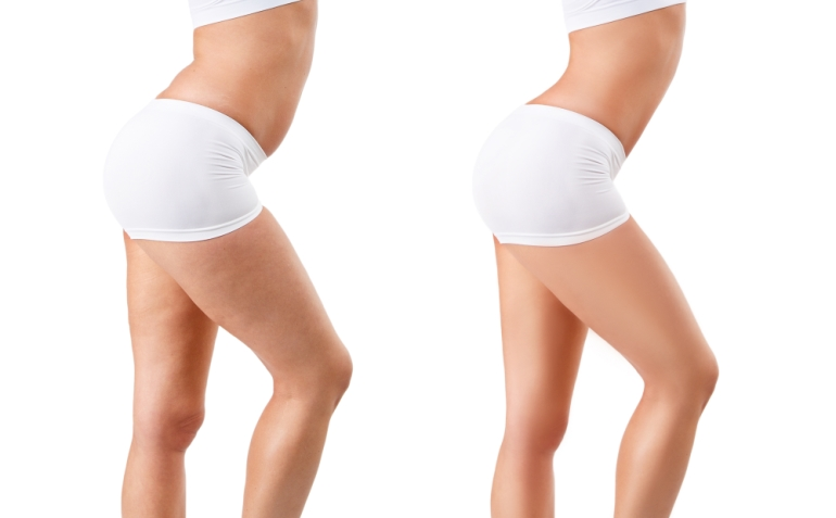 Can you REALLY do anything about cellulite?